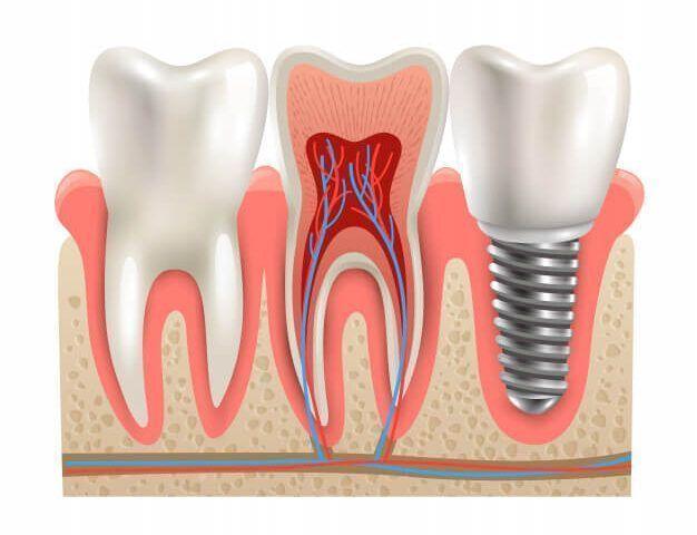 implante dentario em joinville